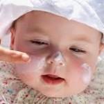 perwatan kesehatan kulit bayi