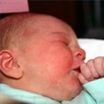 Apakah Bayi Bisa Alergi Dengan ASI