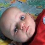 Bayi kurang gizi